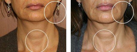 Resserrement 3DEEP du visage et du cou